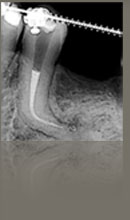 Endodontia microscópica digital