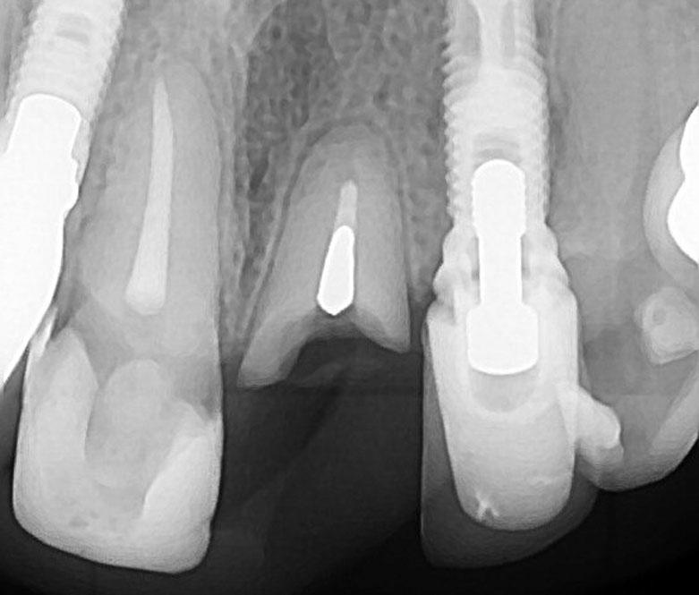 Remoção de instrumento fraturado - Josias Fenelon Endodontia Microscópica Digital