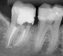 Tratamento de Canal - Josias Fenelon Endodontia Microscópica Digital